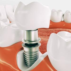 Die Zahnarztpraxis Dr. Bade in Rostock ist Ihr Spezialist wenn es um Zahnimplantate geht.